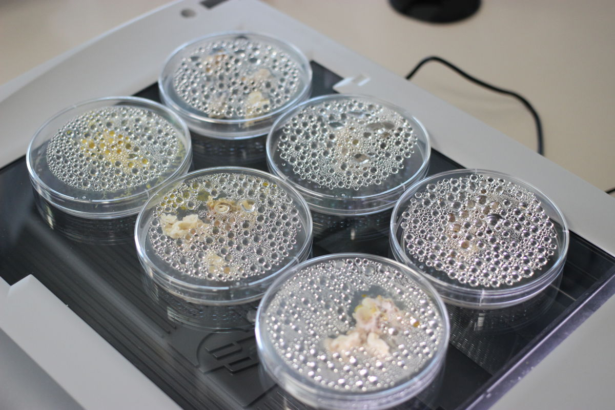 Petri dishes containing slime molds.