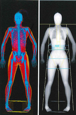 A dual-energy X-ray absorptiometry scan, which shows a participant's skeleton, is shown in the Human Performance Lab at the University of Idaho.