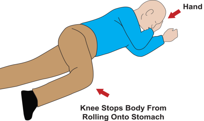 Person on their side, with right hand under cheek and right knee inward and bent in the recovery position.